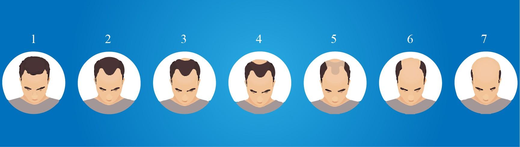 Baldness Level